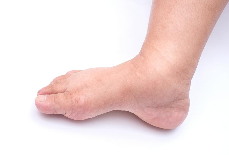 magas vérnyomás ödéma fájdalom a lábakban