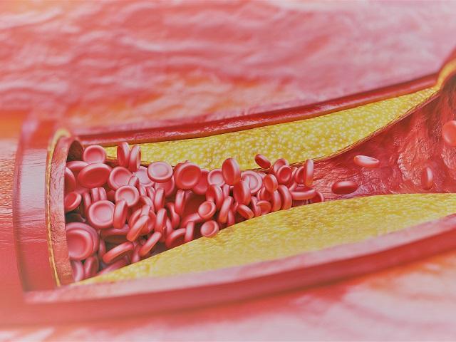 iszlám hipertónia kezelése magas vérnyomás bradycardia népi gyógymódok