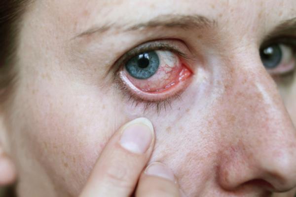 magas vérnyomás és a szem)