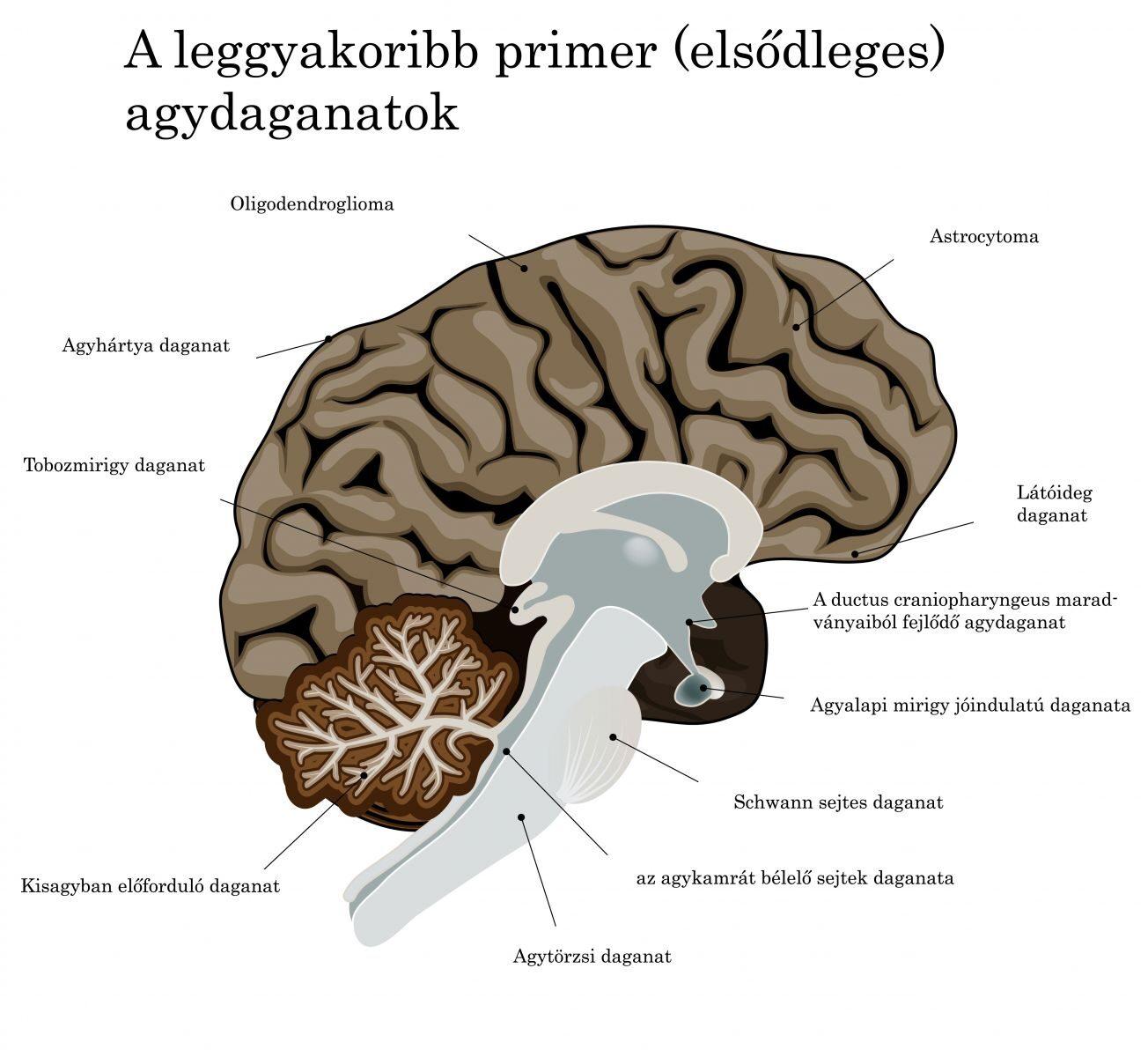 magas vérnyomás és agydaganat