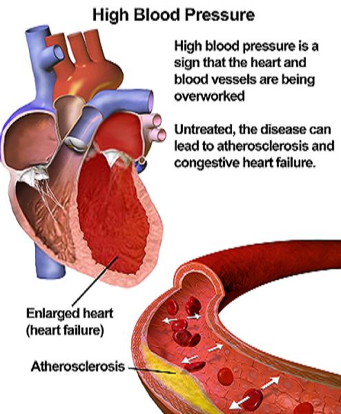 magas vérnyomás visszavonulhat)