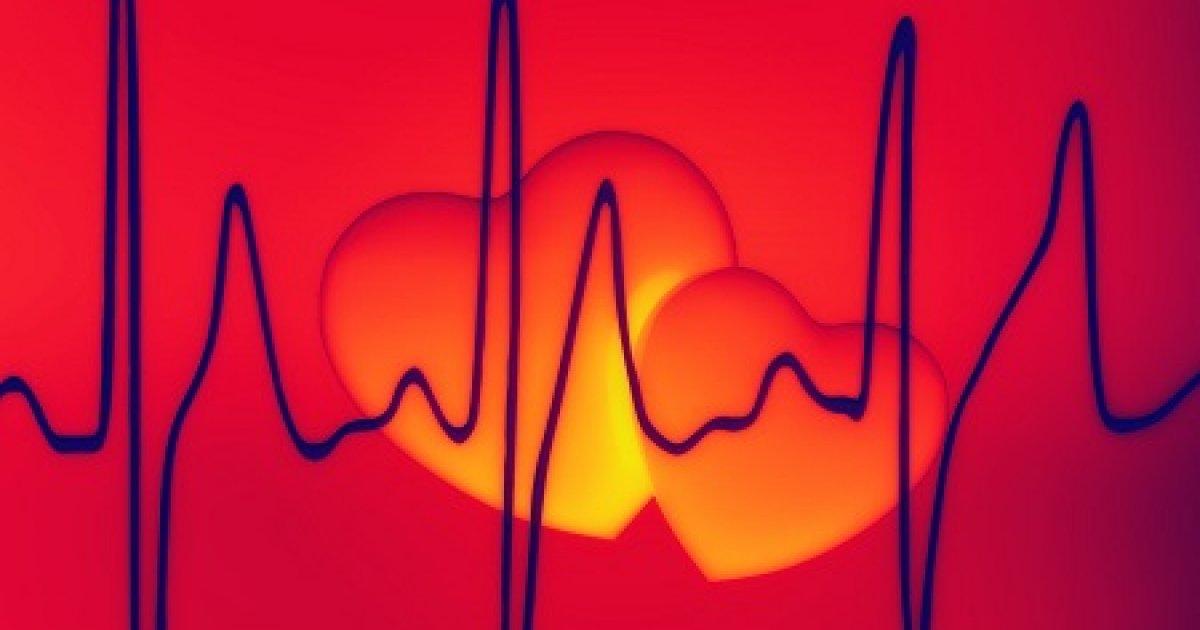 Ezek a szívritmuszavar rizikófaktorai