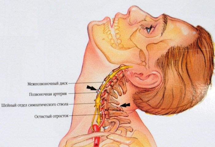 nyaki izom hipertónia)