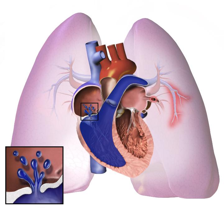 tüdő hipertónia mi ez