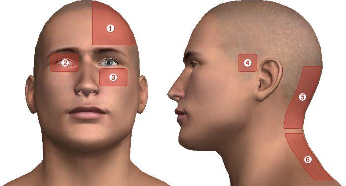magas vérnyomás okozta fejfájás)