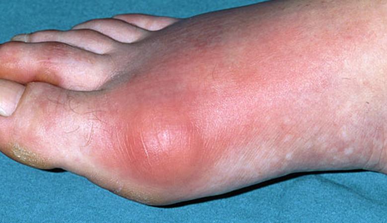 magas vérnyomás esetén a lábak duzzanata hogyan kell kezelni