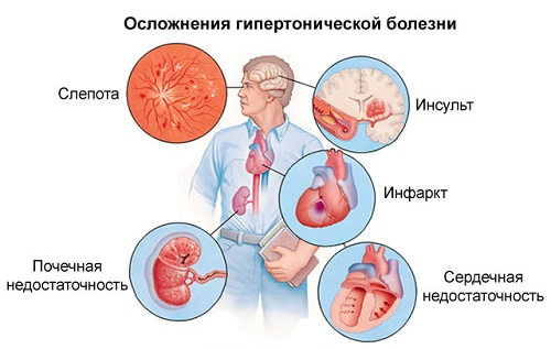magas vérnyomás 2 stádium 1 fok)