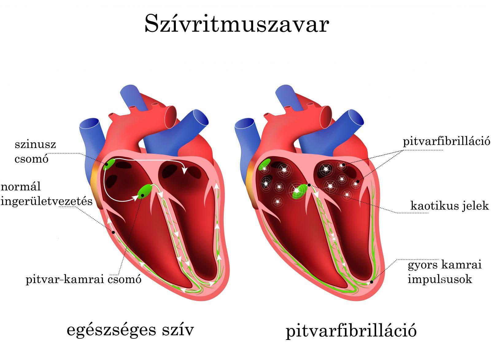 magas vérnyomás esetén bradycardia kezelése)