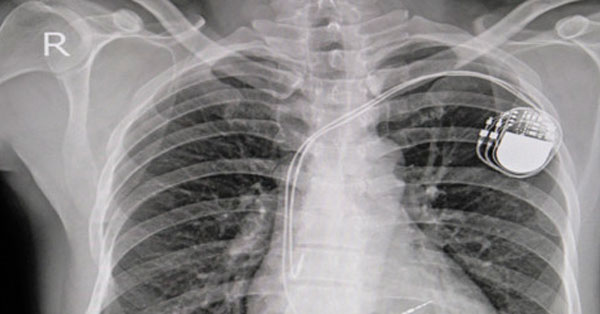 pacemaker és magas vérnyomás)