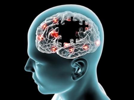 hipertóniás demencia)