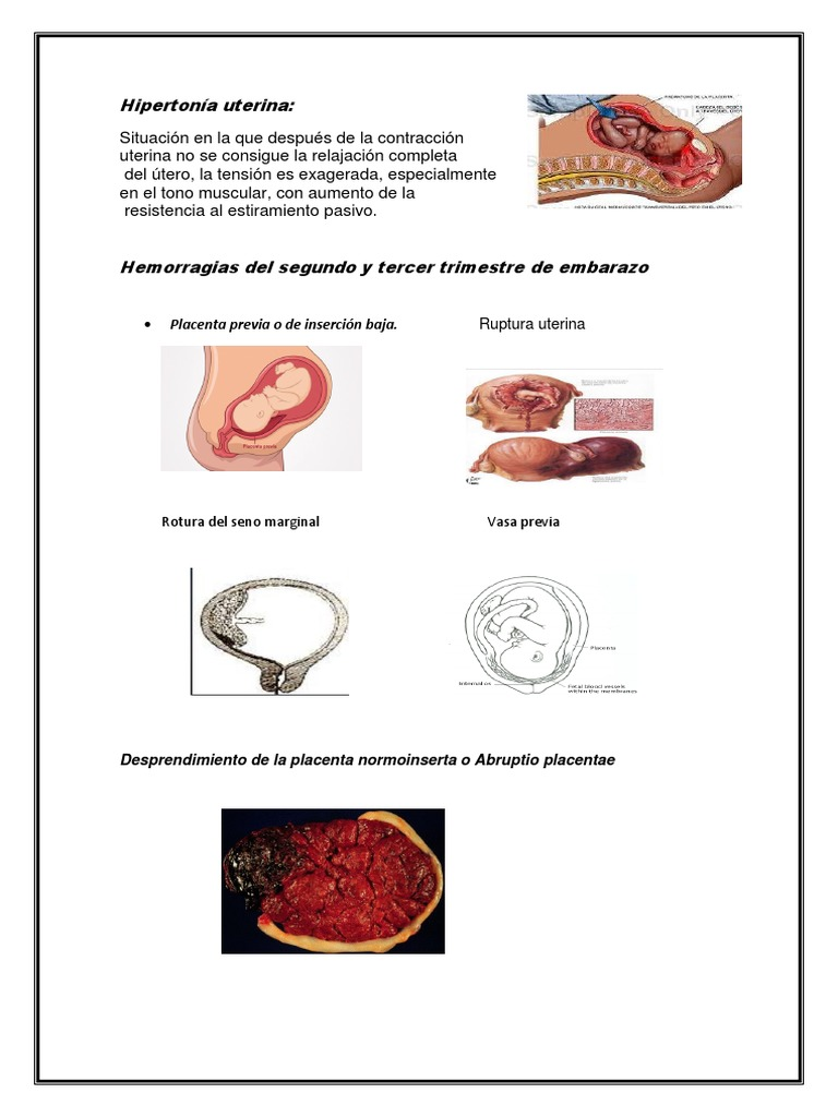 placenta hipertónia
