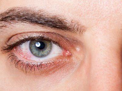 magas vérnyomás és vörös szemek)
