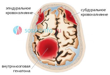 agyi bénulásos látásromlás szem látás gyakorlása