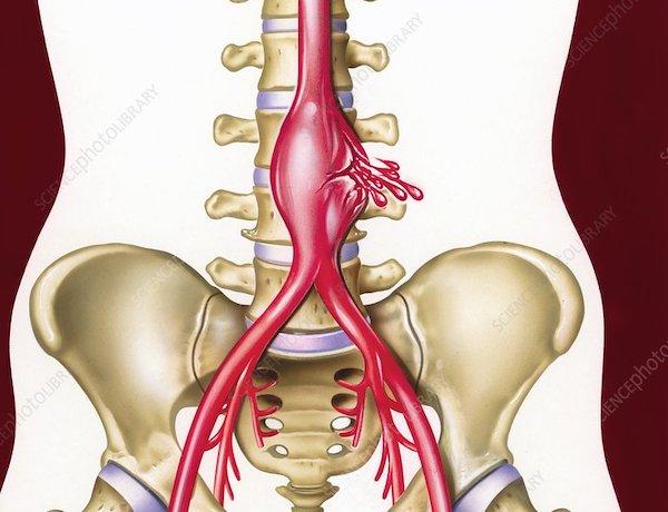 hasi aorta magas vérnyomás esetén)