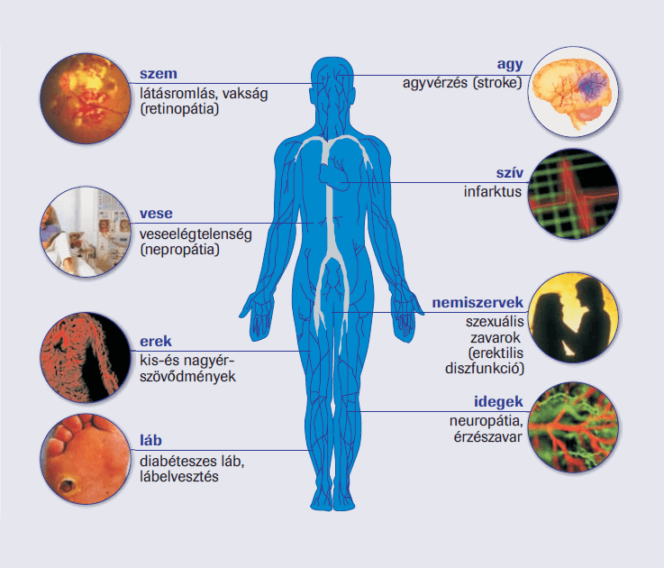 magas vérnyomás és cukorbetegség szövődményei)
