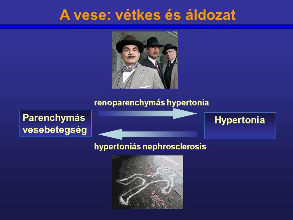 hogy van a vese hipertónia