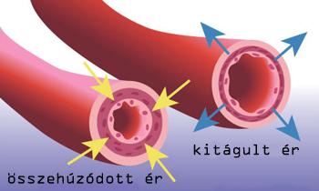 Magas vérnyomás | Dr. Tiszta Víreformalo.hu