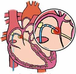 Pitvarfibrilláció - KardioKözpont