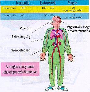 magas vérnyomás milyen betegség