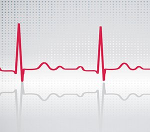 magas vérnyomás tachycardia hogyan kell kezelni iszkémiás hipertónia okai