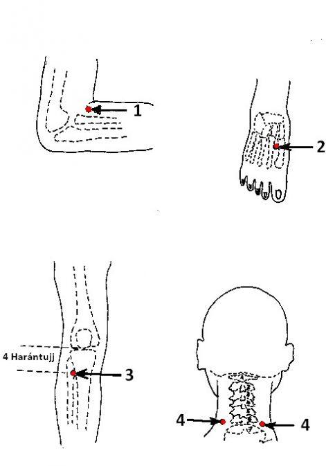 magas vérnyomás és akupunktúra)