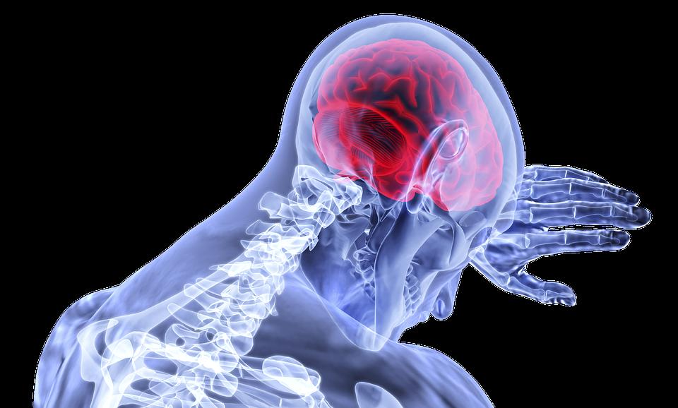 A stroke tünetei, kivizsgálása, kockázatai - KardioKözpont