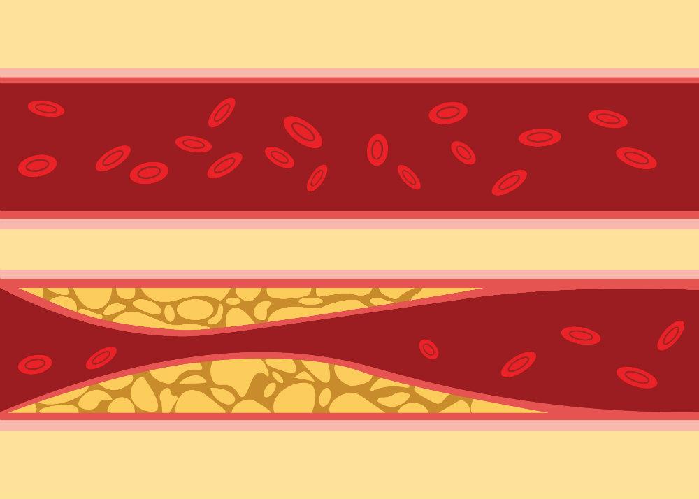 a magas vérnyomást befolyásoló tényezők)