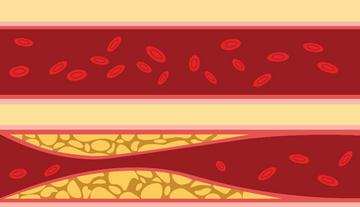 magas vérnyomáshoz kapcsolódó betegségek)