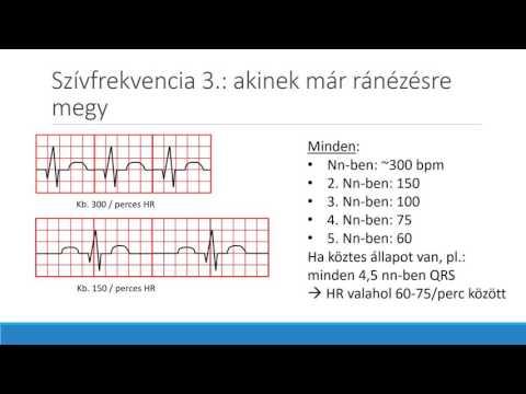 mit kell tenni ha tachycardia és magas vérnyomás)