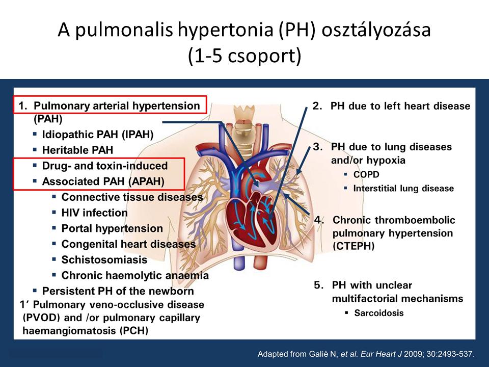 OTSZ Online - Újdonságok a pulmonális artériás hipertónia kezelésében