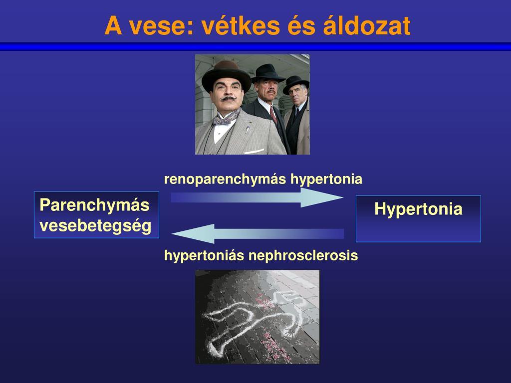 vese hipertónia az mcb szerint