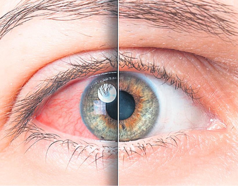 szemgolyó magas vérnyomás
