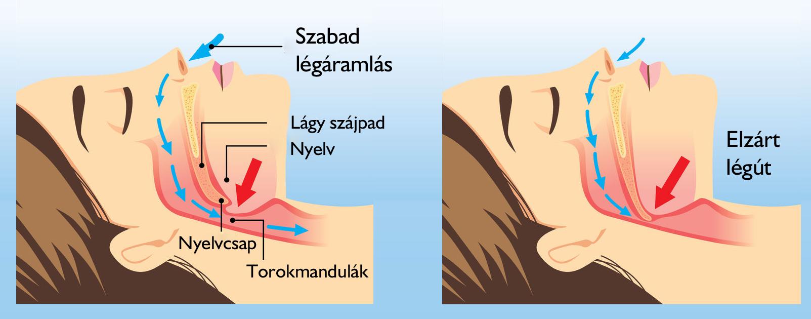 a magas vérnyomás műtéti költségei)
