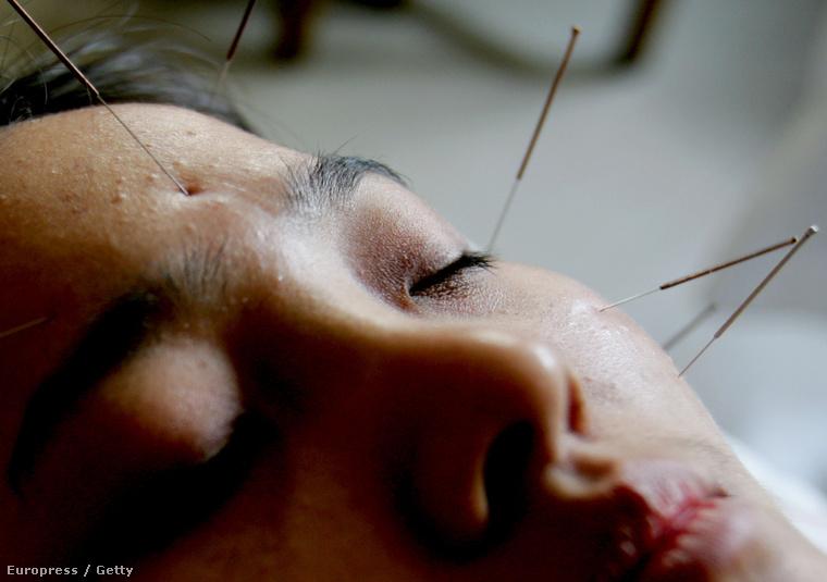akupunktúra hipertóniás vélemények esetén)