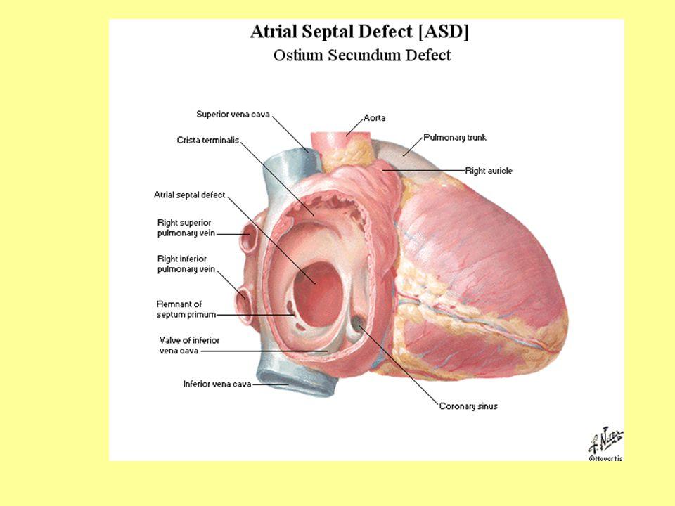 bal szívizom hipertónia amikor magas vérnyomás mit kell enni