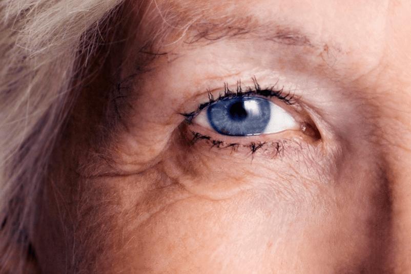 az egyik szem látásvesztése magas vérnyomás esetén)