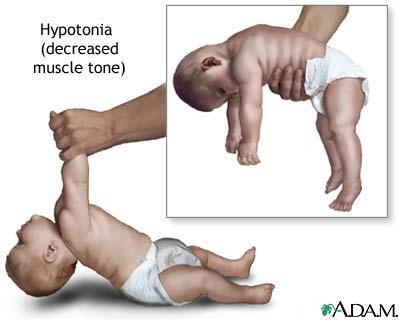 izom hipertónia és hipotenzió)