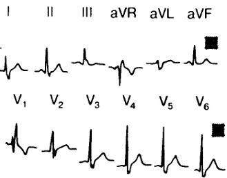 A PNPG hiányos blokkolása az EKG-n