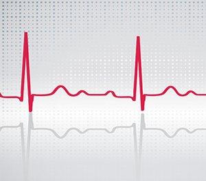 magas vérnyomás tachycardia hogyan kell kezelni