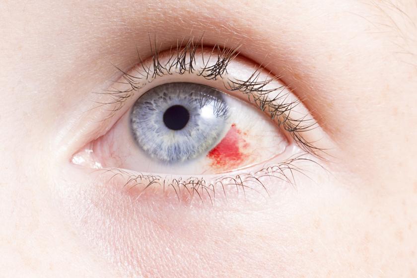 duzzanat a szem alatt magas vérnyomás esetén ami rosszabb hipotenzió vagy magas vérnyomás