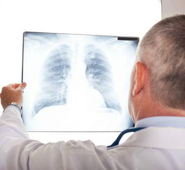 röntgen a tüdőről magas vérnyomás esetén)