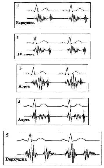 az EKG hipertóniát fog mutatni