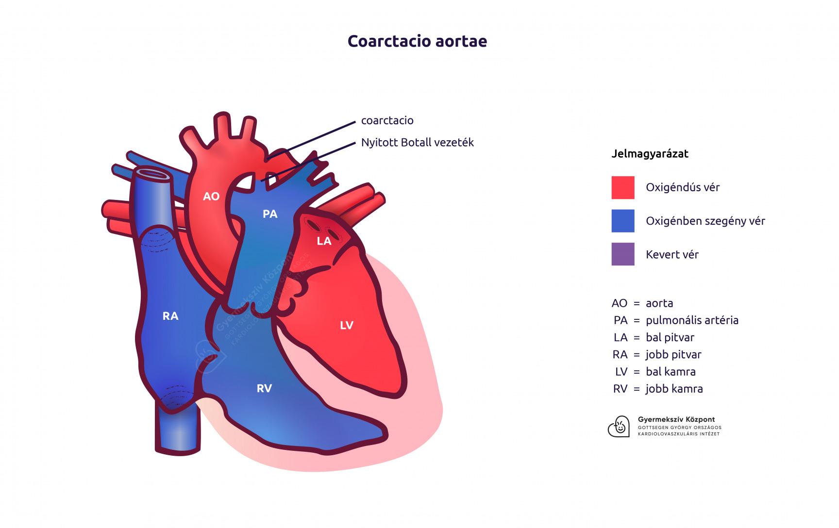 a magas vérnyomás aorta kezelésének koarktációja)