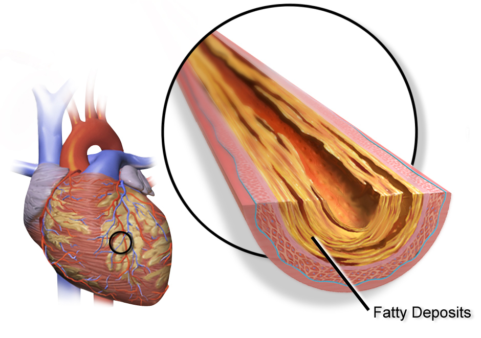 magas vérnyomás ischaemia angina)